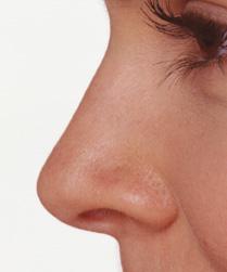 هزینه عمل بینی دکتر خسروی نژاد